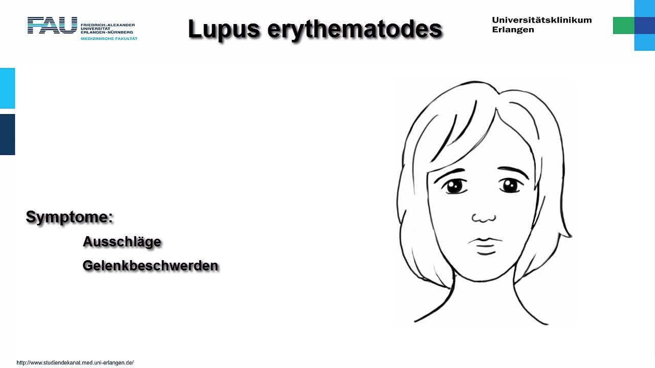Medcast - Innere Medizin - Lupus erythematodes preview image