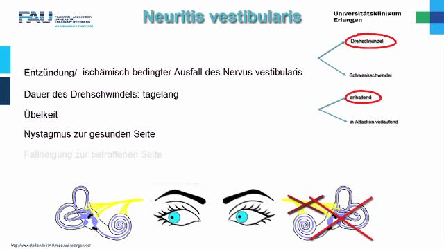 Medcast - Neurologie - Schwindel 2 preview image