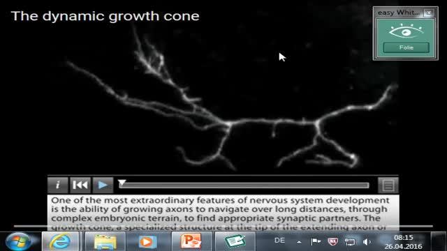 Neuroanatomie: Wachstumskegel, Rückenmarksentwicklung, Neuralleiste preview image