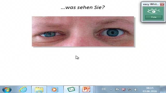 Horner; Retinaschichten preview image