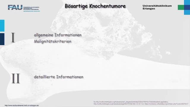 Medcast - Orthopädie - Bösartige Knochentumoren 1 preview image
