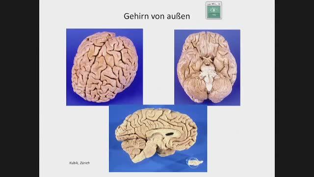 Neuroanatomie - Orientierung an Hirnbasis und innen: Ventrikel und Kerne preview image