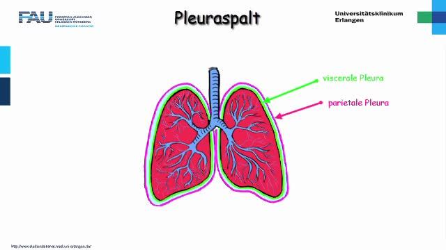 Medcast - Chirurgie - Pleuraspalt 1 preview image