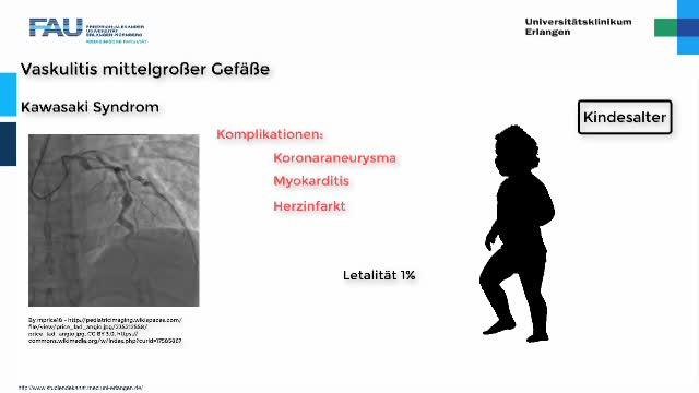 Medcast - Rheumatologie - Vaskulitiden 2 preview image